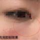黑眼圈可以遮盖,这泪沟是真的没得救,p图的时候还贼难不就。一直害怕玻尿酸里的交联剂,怕后期融不干净,...