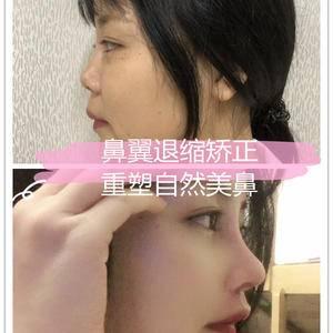"""鼻翼退缩矫正,重塑自然美鼻,彰显迷人""""侧颜杀"""""""