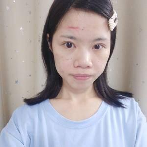 皮肤美容祛疤修复
