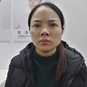 眼修复+鼻修复