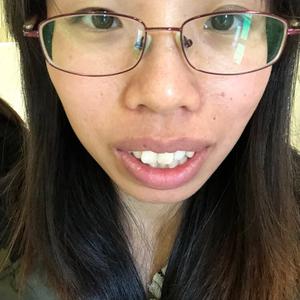 正颌整形术