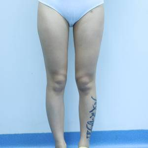 直腿术变美