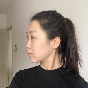 假体隆鼻+耳软骨移植