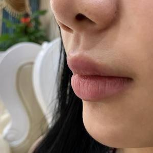 唇部整形—M唇