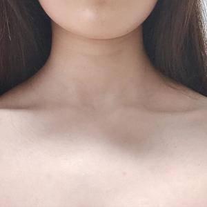 瘦肩针【昆明韩辰】