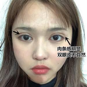 常州美莱 双眼皮修复手术日记