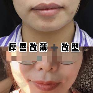 遗传性厚唇可以做厚唇改薄术吗?术后会留下明显疤痕吗