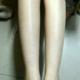 亮白亮白的,无比开心~~中间一段长时间没去,腿毛也长的很慢哈哈哈,去到之后一并祛除,太好了。