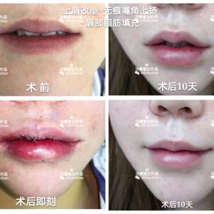 唇综合案例分享