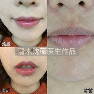 案例分享:上下唇改薄+甜美微笑唇