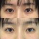 术后即刻泪沟不见了,黑眼圈也跟着淡了这是你擦多少瓶眼霜都达不到的效果
