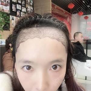 靓丽宝妈的青春轻松植发之路