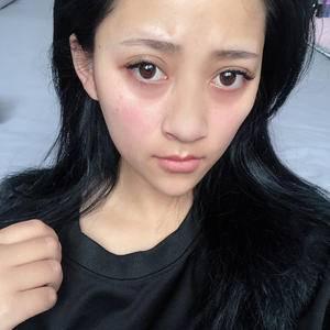 【常州美莱】梓轩的隆鼻手术日记