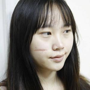 面部疤痕修复