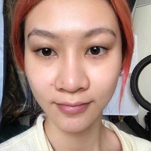 改善眼皮松弛下垂,割双眼皮还是提眉好