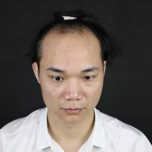 韩妃头发种植