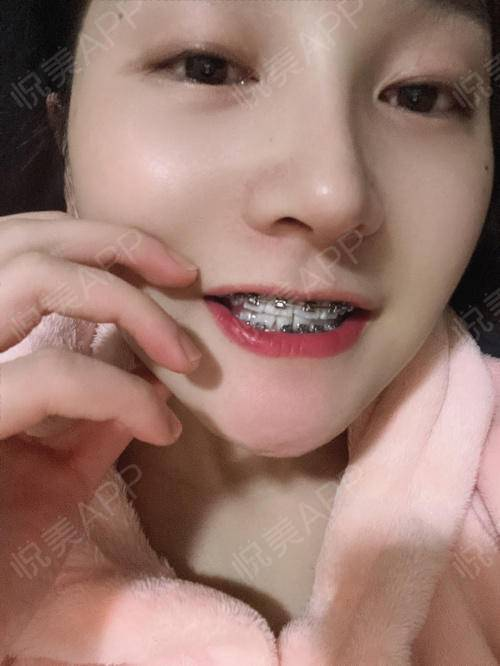 下牙套的最后一个托槽终于粘上啦~但是缝隙拉开了牙齿真的巨丑……现在下牙也开始在排齐了下一次过去复诊就又可以整体都调一下啦...