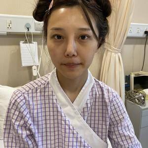 杭州颧骨手术