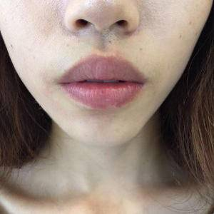 唇整形M唇