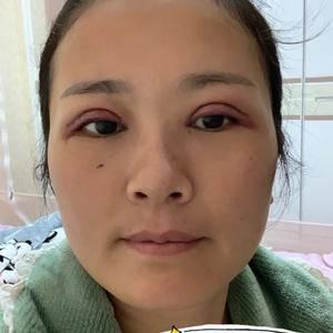 双眼皮做多少毫米合适?