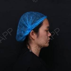 自體軟骨隆鼻整形5