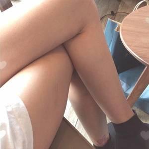 【常州美莱】酷塑冷冻溶脂瘦大腿