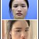 很多小仙女觉得脸部的神经比较的多,做面部填充会比较的危险,但其实只要选择正规的医院,找在脂肪移植...