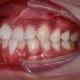 """相信每个大鲍牙妹子都有一段辛酸史,牙齿矫正是从高中时期就想进行的,可嫌""""钢牙""""太丑,被人笑话,留下心..."""