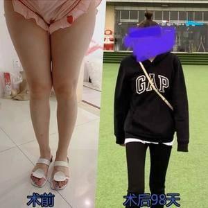 大腿吸脂术后恢复分享
