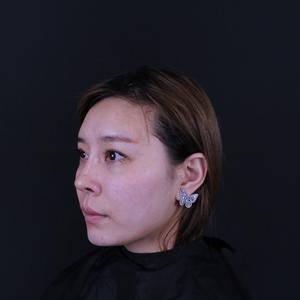 fotona4D Pro媚眼光雕
