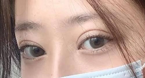 全切双眼皮术后3个月左右了,还有一点点肿,恢复的挺快的,形态也很好。当时就是想着双十一的假期,把肿的几天度过,确实当时恢...