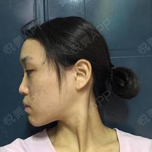 隆鼻變美5