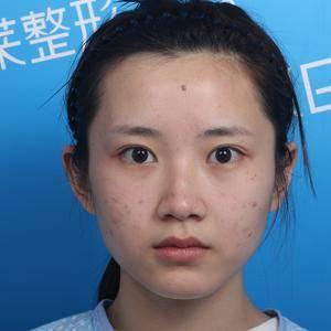 【常州美莱】小呦的鼻部多项手术
