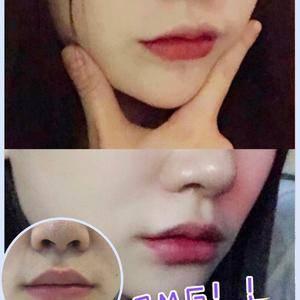 案例分享|唇综合|术后一个月