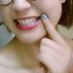 牙齿比较黄且有一点点拥挤那种,知道牙齿黄可以做美白,但是以前却不知道牙齿不整齐也可以做贴面。后来也是听...