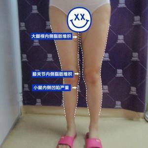 大腿吸脂+腿型矫正,如何拥有笔直美腿