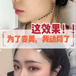 下颌角手术改善脸宽