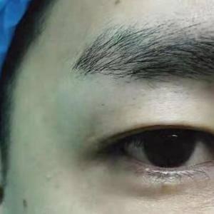 谁说男生不能做双眼皮