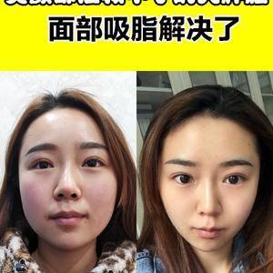 美颜都拯救不了的大胖脸,面部吸脂解决了!