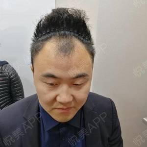 轻松植发,见证大叔变型男