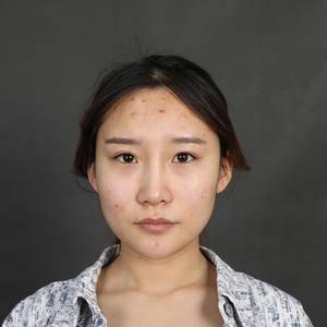 鼻修复+超体综合隆鼻