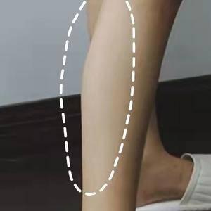 国产瘦腿针也不错