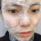 今天来做水光补水,最近皮肤实在太差了。希望做个水光针缓解一下,