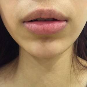 M唇+下唇塑形
