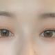 眼睛好看不好看真的很重要,不但影响颜值,还会影响运气呢哈哈哈!原来皮肤松弛很严重,做了提眉之后,拆线...