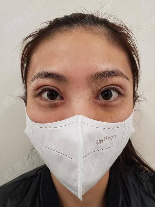 今天去医院拆线啦~顺便和他们要了术前给我拍的照片。原来很多年前做过埋线双眼皮,想要修复便经过朋友介绍找到了季医生。医生说...