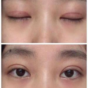 提前两个月预约的刘亦菲双眼皮