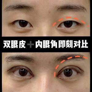 【双眼皮➕内眼角即刻对比】