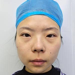 满脸的胶原蛋白都是脂肪填充