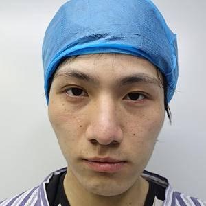 颧骨降低手术 无针塑骨术